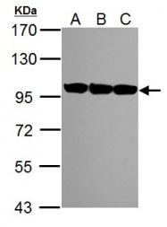 GTX113099 - TER ATPase / VCP