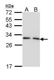 GTX113298 - 14-3-3 protein gamma