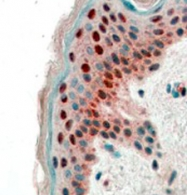 GTX89431 - 14-3-3 protein sigma / SFN
