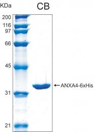PRO-50003-0025 - Annexin A4 / ANXA4