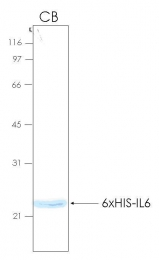 PRO-50012-0050 - Interleukin-6 / IL6