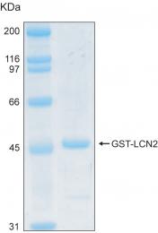 PRO-50015-0025 - Lipocalin-2