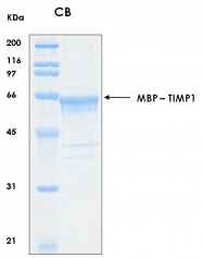 PRO-50023-0025 - TIMP1