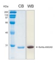 PRO-50030-0010 - Annexin A9 / ANXA9