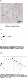 MAB-001 - Lipocalin-2