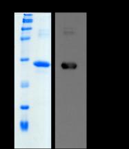 PRO-50050-0050 - CTHRC1