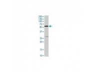 IQ439 - Cytochrome b-245 heavy chain