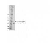 IQ260 - SIP1 / GEMIN2
