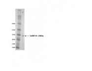 IQ205 - hnRNP core protein A1 / HNRNPA1