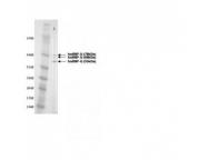 IQ211 - hnRNP-Q / HNRPQ