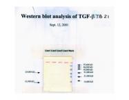 IQ159 - TGFB1