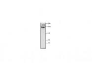 IQ592 - Glutamate receptor 2 / GLUR2