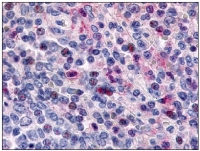 Fig. 1: <span>Immunohistochemical staining of spleen lymphocytes using anti- CCR1 antibody SP4001P</span><span>.</span>