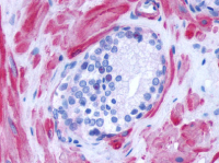 Immunohistochemical staining of Prostate using anti- ADRA1D antibody SP4062P