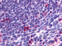 Fig. 2: <span>Immunohistochemical staining of Spleen (Lymphocytes) using anti- CCR2 antibody SP4086P</span><span>.</span>