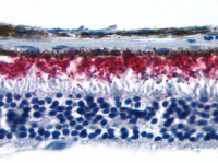 Fig. 1: <span>Immunohistochemical staining of Eye (Retina) using anti- RHO antibody SP4492P</span>