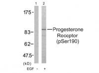 a) Western blot analysis of extract from SKOV3 cells untreated (lane 1) or treated with EGF (lane2) using Progesterone Receptor (pSer190) antibody