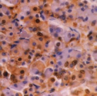 Fig. 1: Immunohistochemical staining of Ubiquitin in Formalin fixed, Paraffin processed tissue of Human hypophysis using antibody SM1422P.