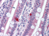 Fig. 2: AP07336PU-N PDCD1 antibody staining of Formalin-Fixed Paraffin-Embedded Human Small Intestine.