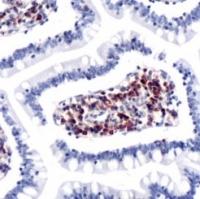 Fig. 7: <span>AP15408PU CCR7 antibody staining of Human Small Intestine</span><span>.</span>