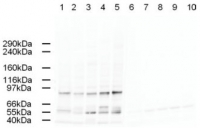 Fig. 5: Western blot using Affinity Purified anti-AP2A antibody shows detection of a band just below 100 kDa corresponding to Human AP2A1 in a various preparations. Lane 1 - HeLa nuclear extract, Lane 2 - HeLa, Lane 3 - 293, Lane 4 - A431 and Lane 5 - Jurkat whole cell lysates. In lanes 6-10 the antibody was preincubated with 1 µg/ml of the immunizing peptide which effectively blocks the specific reactivity of this antibody with AP2A. Approximately 20 µg of each lysate was run on a SDS-PAGE and transferred onto nitrocellulose followed by reaction with a 1:500 dilution of anti-AP2A antibody. Detection occurred using a 1:5,000 dilution of HRP-labeled Rabbit anti-Goat IgG for 1 hour at room temperature. A chemi-luminescence system was used for signal detection (Roche) using a 60-sec exposure time.