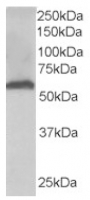 Fig. 2: <span>FTCD Antibody staining (AP16258PU-N at 0.03µg/ml) of Human Liver lysate (35µg protein in RIPA buffer). Primary incubation was 1 hour. Detected by chemiluminescence.</span>