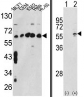 Fig. 5: <span>(LEFT) Western blot analysis of CCT3 Antibody (Center) (AP17198PU-N) in MCF7,CEM,K562,HL-60,Hela cell line lysates (35ug/lane).CCT3 (arrow) was detected using the purified Pab. (RIGHT) Western blot analysis of CCT3 (arrow) using rabbit polyclonal CCT3 Antibody (Center) (AP17198PU-N). 293 cell lysates (2 ug/lane) either nontransfected (Lane 1) or transiently transfected with the CCT3 gene (Lane 2).</span>