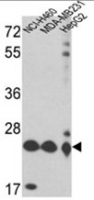 Fig. 2: <span>Western blot analysis of PRDX3 Antibody (N-term) (AP17663PU-N) in NCI-H460,MDA-MB231,HepG2 cell line lysates (35ug/lane). PRDX3 (arrow) was detected using the purified Pab.(2ug/ml).</span>