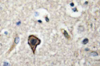 Fig. 4: Immunohistochemistry (IHC) analyzes of TWEAK pAb in paraffin-embedded human brain tissue.