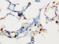 Fig. 2: Immunohistochemical analysis of paraffin-embedded rat tissue sections (lung), staining SOCS1 in nucleus, DAB chromogenic reaction.