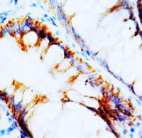 Fig. 1: NPY1R Polyclonal Antibody.