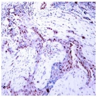 b) Immunohistochemical analysis of paraffin- embedded human breast carcinoma tissue, using Progesterone Receptor (pSer190) antibody