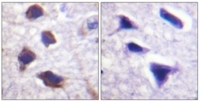 Immunohistochemistry analysis of Paraffin-Embedded Human brain tissue, using Adrenergic Receptor beta-2 antibody. The picture on the right is treated with the synthesized peptide.