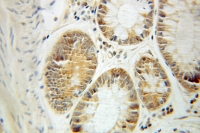 Fig. 6: <span>Immunohistochemistry of paraffin-embedded Colon cancer using 10571-1-AP(CCT3 Antibody) at Dilution 1:50 (under 10x lens)</span>