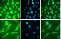 Staining of Rh30 rhabdomyosarcoma (upper panels) and SJSA-1 Ewing's sarcoma cells (lower panels) for GAPDH with ACR001P anti-GAPDH monoclonal antibody (left panels). FITC conjugated secondary antibody. The middle panels show DAPI staining of the cell nuclei. The right panels show merged images.