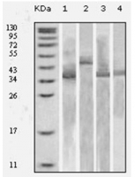 Fig. 4: <span>Western blot analysis using Trx antibody Cat.-No AM06168SU-N against various fusion protein with Trx tag.</span>