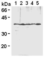 Western blot analysis of hnRNP-A2/B1 expression in Jurkat (1), Raji (2), HeLa (3), MCF-7 (4) and NIH/3T3 (5) using AM26527AF-N.