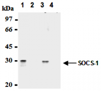 Fig. 1: Immunoprecipitation of SOCS-1 from mouse splenocytes (1) and mouse thymocytes (3) with AM26561AF-N (1,3) or mouse IgG1 (2,4). After immunoprecipitated with the antibody, immunocomplex was resolved on SDS-PAGE and immunoblotted with biotinylated anti-SOCS-1 monoclonal antibody.