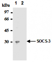 Fig. 4: Immunoprecipitation of SOCS-3 from mouse hepatocytes with AM26562AF-N (1) or mouse IgG1 (2) After immunoprecipitated with the antibody, immunocomplex was resolved on SDS-PAGE and immunoblotted with biotinylated anti-SOCS-3 monoclonal antibody.