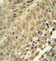 Immunohistochemistry analysis in formalin fixed and paraffin embedded human bladder carcinoma reacted with HNRNPC Antibody (C-term) Cat.-No AP52068PU-N followed by peroxidase conjugation of the secondary antibody and DAB staining.