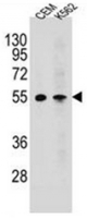 Fig. 3: <span>Western blot analysis of MCHR1 / GPR24 Antibody (C-term) Cat.-No AP52635PU-N in CEM,K562 cell line lysates (35ug/lane). This demonstrates the MCHR1 antibody detected the MCHR1 protein (arrow).</span>