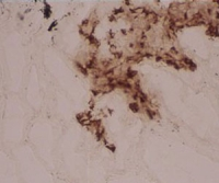 IHC staining of human lung frozen section with clone 104G4 (DX0190P-100)