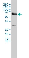 <span>CCT6B monoclonal antibody (M01), clone 1A4 Western Blot analysis of CCT6B expression in HL-60 ( Cat # L014V1 ).</span>