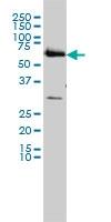 <span>CCT6B monoclonal antibody (M01), clone 1A4 Western Blot analysis of CCT6B expression in HL-60 ( Cat # L014V1 ).</span>