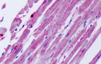 Fig. 11: <span>Immunhistochemistry analysis in human heart (Formalin-fixed, Paraffin-embedded) using CCR11 / CCRL1antibody Cat.-No. SP4097P.</span>