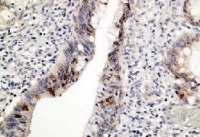 Fig. 2: Staining of human colon carcinoma tissue (FFPE) with p53 antibody Cat.-No. DB 026-0.5 shows positive nuclear immunostaining of tumor cells