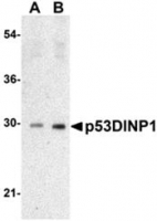 Fig. 6. Western blot analysis of p53DINP1 expression in human lung tissue lysate with p53DINP1 antibody Cat.-No. AP30639PU-N at 0.5 µg/ml (A) and 1 µg/ml (B)