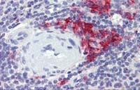 Fig. 2: Spleen (FFPE) stained with CD38 antibody Cat.-No. AM20475SU-N