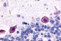 Fig. 1: Staining of formalin-fixed, paraffin-embedded (FFPE) rat brain (Purkinje neurons) using ADORA1 antibody Cat.-No. SP4623P; biotinylated secondary antibody, alkaline phosphatase-streptavidin and chromogen