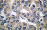 Fig. 1: Formalin-fixed, paraffin-embedded (FFPE) human breast carcinoma tissue stained with GRP78 antibody Cat.-No. AP06149PU-N